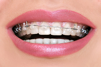 Brackets transparent